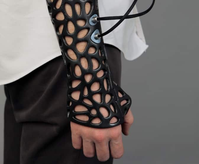 These 3D-Printed Casts Use Ultrasound to Heal Your Body Fast 3