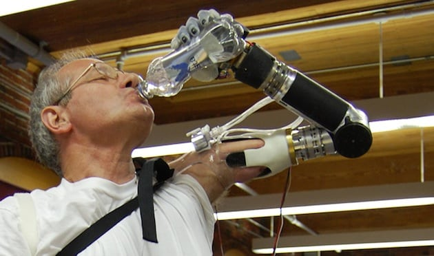 Segway Inventor Creates Innovative Prosthetic Arm 2