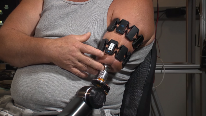 Prosthetic Controlled Using Myo Armband, Thanks To Johns ...