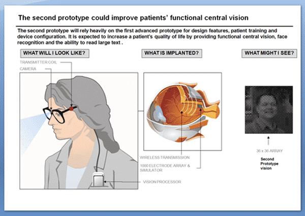 Australian researchers unveil bionic eye prototype, implants coming in 2013 11