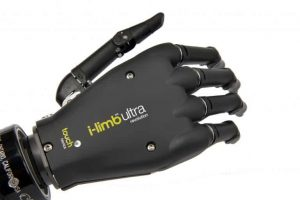 Touch Bionics Prosthetic Hand 11