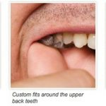 Sonitus Medical's SoundBite dental hearing aid receives European approval 1